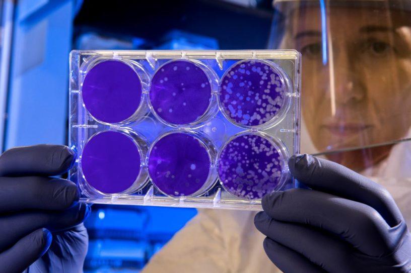 Inteligencia Artificial: la solución contra el coronavirus